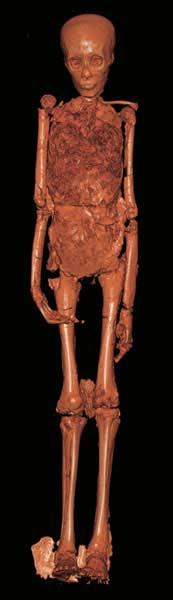 CT Scan von Tutanchamun